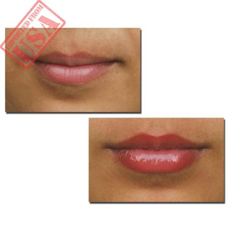 Lip Plumper, Enhancer, Volumizer by Rozgé Renew Lip Plumper