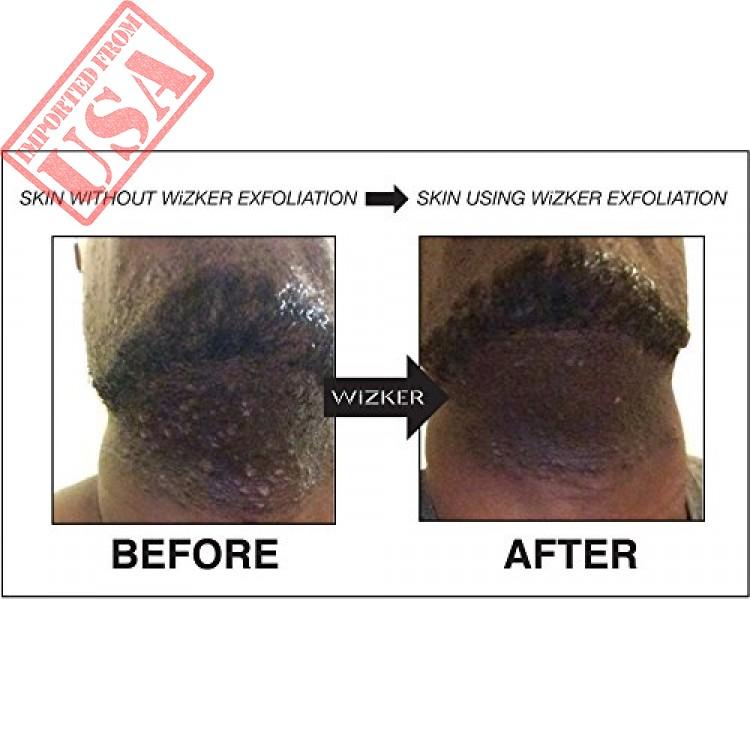Buy Exfoliating Brush Wizker Wet Dry Original Bump Ingrown Hairs Firmflex Bristles Sale In Pakistan