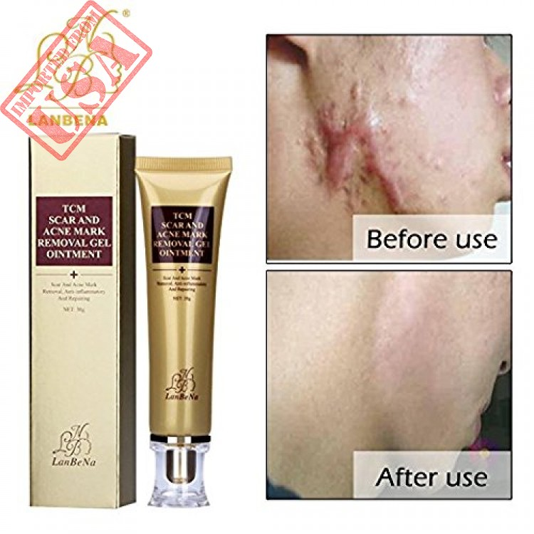 Wisdompark Acne Scar Removal Cream Skin Repair Face Cream Acne Spots Acne Treatment Blackhead Whitening Cream Stretch Marks 30ml 1pcs
