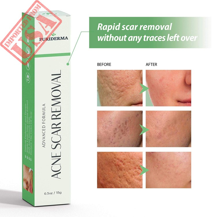 High Quality Acne Scar Removal Cream Treatment For Face Imported From Usa For Sale In Pakistan