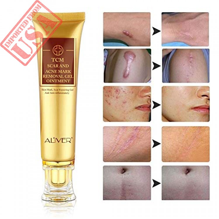Buy Scar Removal Cream Tcm Scar Cream Skin Repair Cream Acne Spots Acne Treatment Blackhead Whitening Cream Scar Away For Face And Body 30ml Imported From Usa