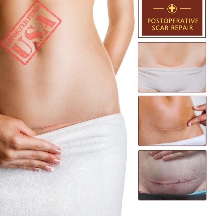 Buy Scar Removal Cream Tcm Scar Cream Skin Repair Cream Acne